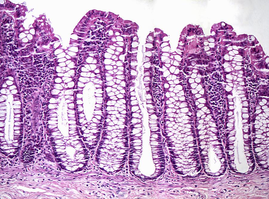 acute distal colitis
