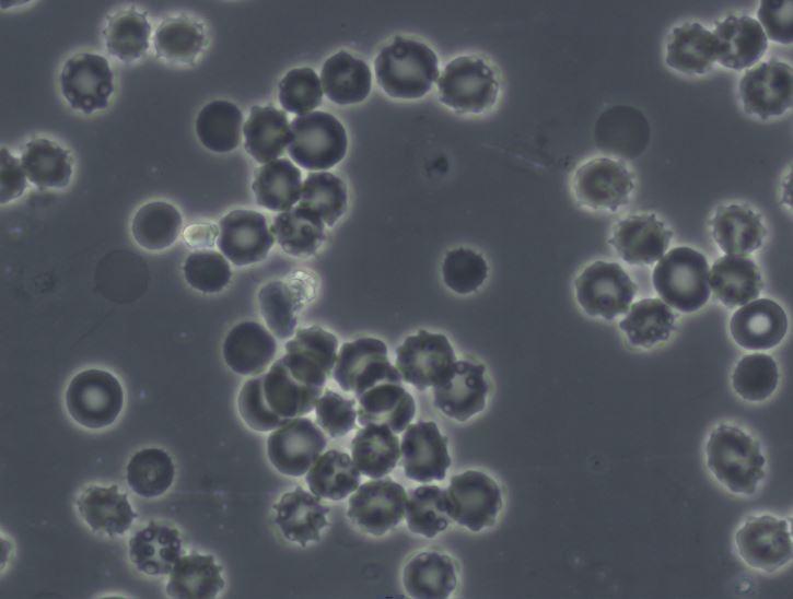 Blood Smear Babesia