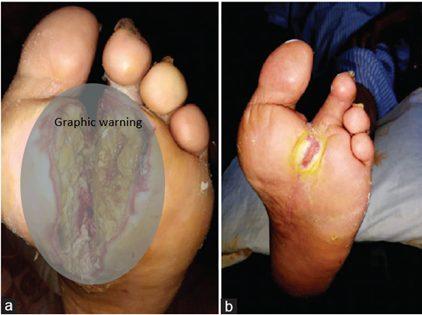 Diabetic foot ulcer progress healing with ozone treatment