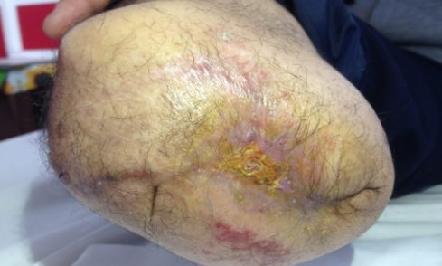 Ozone treated wound